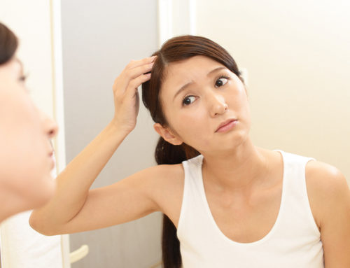 """""""I've experienced hormonal hair loss and did this to change my life around."""" 3 Ways to Tackle Female Hair Loss"""